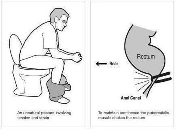 Likes - How to use the bathroom when constipated ...