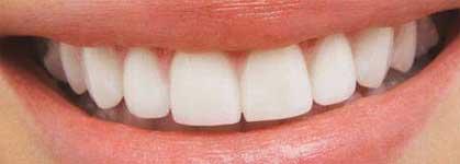 Clareamento Dental Caso Clinico Odontodivas
