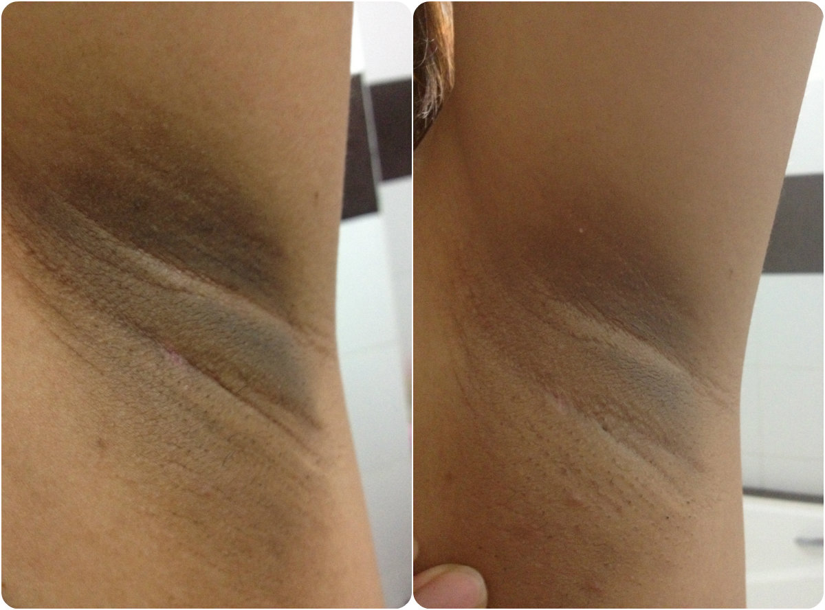Itchy Patch Underarm