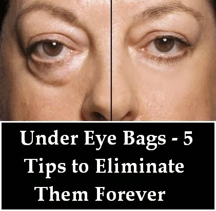 Natural Under Eye Cream For Bags