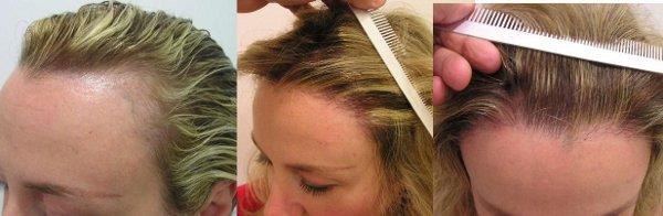 Trasplante de capilar: ¿Cuántos injertos de pelo necesito?