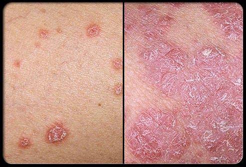 Apply only to the areas of skin affected by psoriasis 1