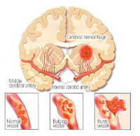 Clinical Symptoms of Intracerebral Hemorrhage Stroke