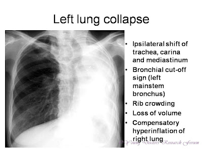 Ipsilateral shift of trachea, carina and mediastinum Bronchial cut-off sign (left mainstem bronchus) Rib crowding Loss of volume Compensatory hyperinflation of right lung