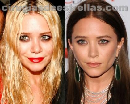 Mary Kate Olsen antes y después