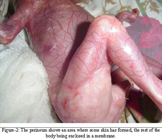 chicken pox in eye #9