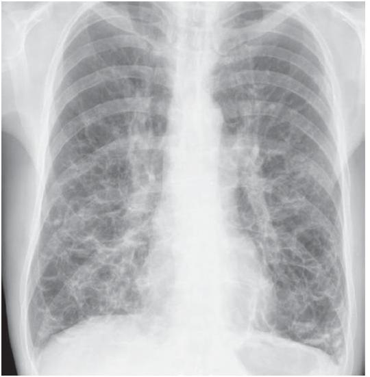 chest medicine made easydr deepu bronchiectasis