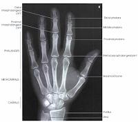 PA hand radiograph