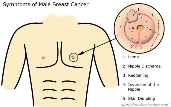 Male breast estrogen