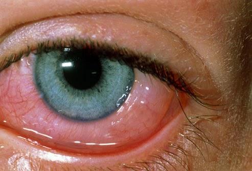 röda ögon stress