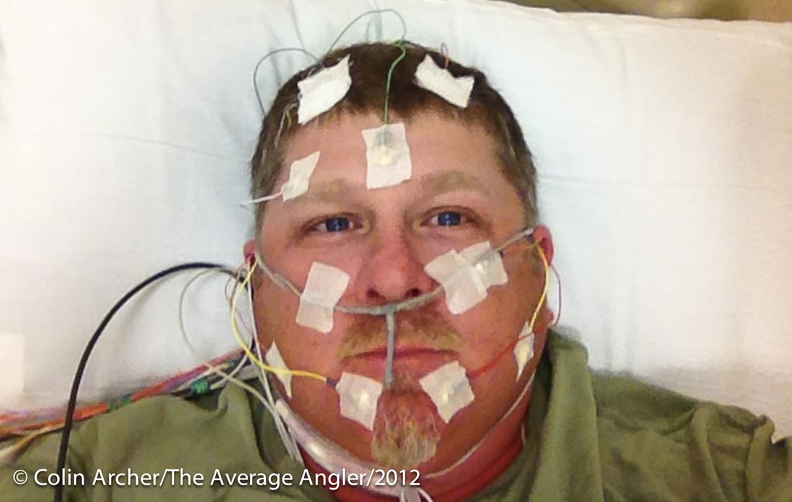 Sleep study hook up pictures