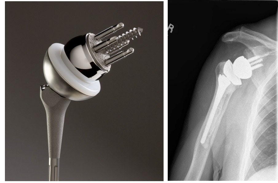 Shoulder Arthritis / Rotator Cuff Tears: causes of