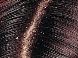 وصفات الدكتور عماد ميزاب لعلاج قشرة الشعر