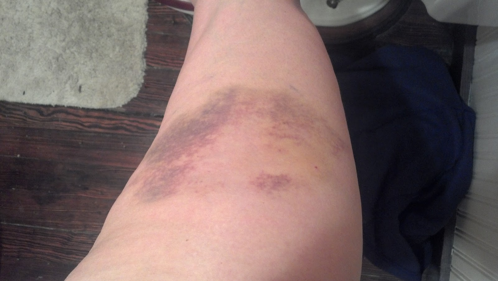 What does it mean if a bruise is yellow  Zocdoc Answers