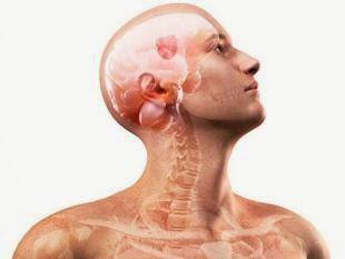 Tumor Di Bagian-Bagian Otak