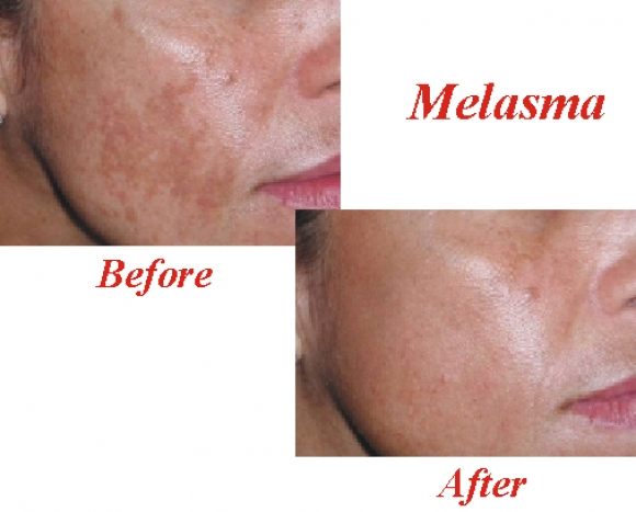 an analysis of melasma Title: treatment of melasma using a novel 1927 nm fractional thulium laser: a  retrospective analysis of 68 korean patients, journal title:.