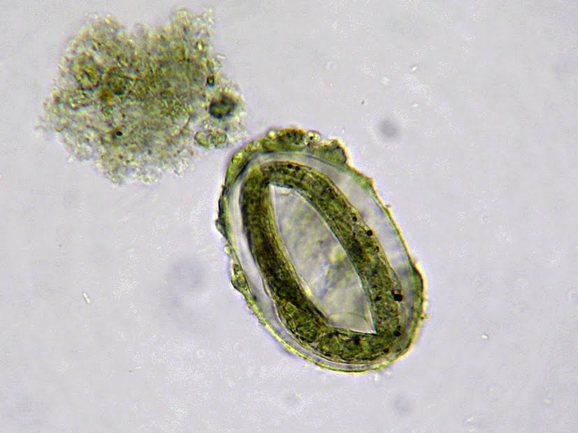 Strongyloides Stercoralis PictureStrongyloides Stercoralis