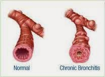 Gejala paru-paru basah kronis
