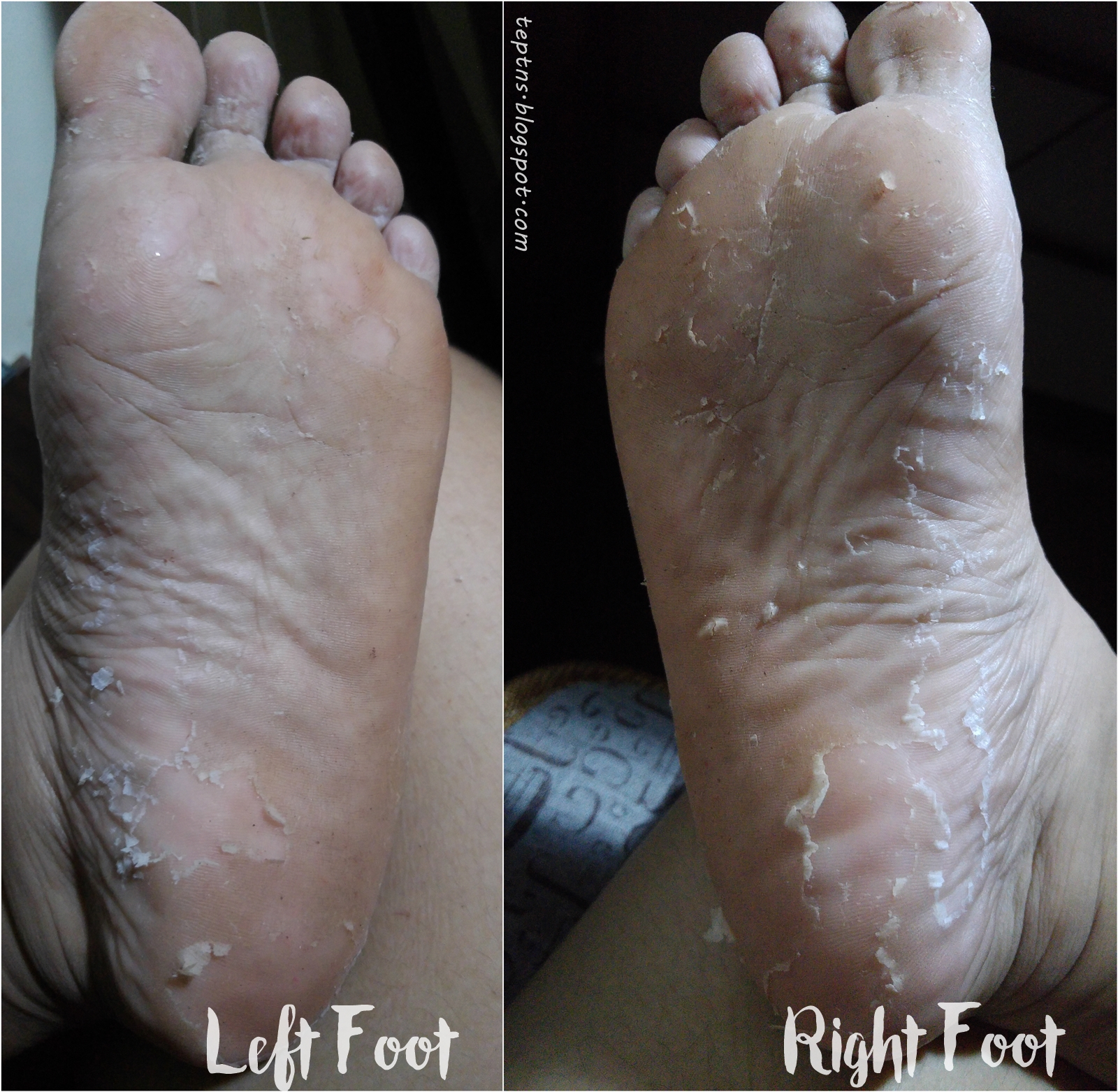 How to Use an Exfoliating Foot Peel