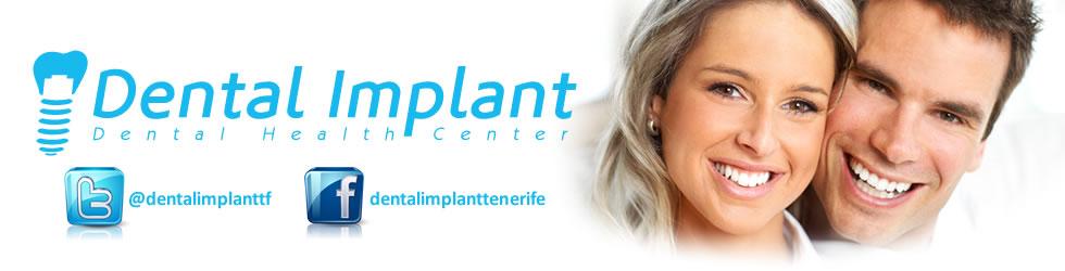 DENTAL IMPLANT NEWS AND ARTICLES (Noticias Dental Implant)