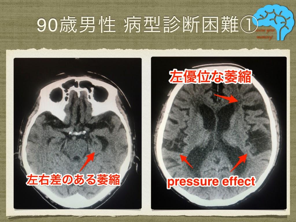鎮痛剤を使わない頭痛の治療①