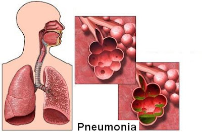 the causes symptoms and known treatments of pneumonia Pneumonia is a common lung infection that is often a complication of the flu most healthy people recover from pneumonia in a few weeks but it can be life-threatening learn about causes and symptoms of pneumonia find out how your doctor diagnoses pneumonia, learn about treatment options.