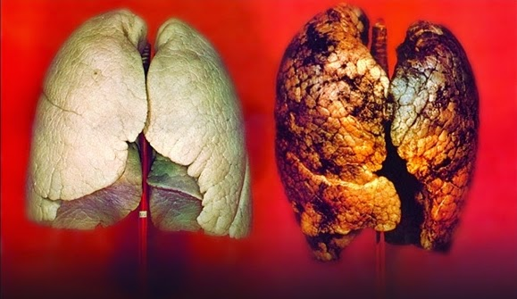 kaynakçılarda akçiğer hastalıkları ile ilgili görsel sonucu
