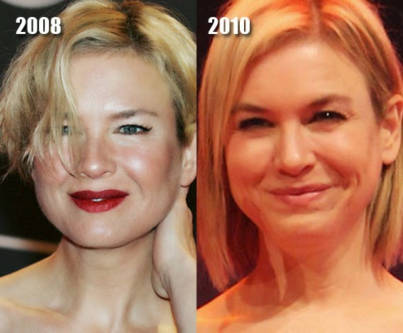 Renee Zellweger Before And After Eyes Chatter Busy: Renee Ze...