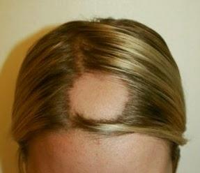 alopecia areata treatment, alopecia areata causes, alopecia areata pictures