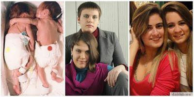 Ajaib Pelukan Bayi Menyelamatkan Saudara Kembarnya