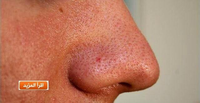 طريقة لإزالة الرؤوس السوداء في الوجه والأنف