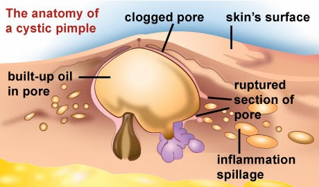 Cystic acne scars