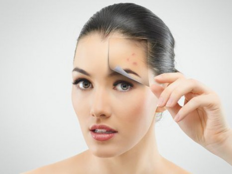 Cuidados para evitar el acné