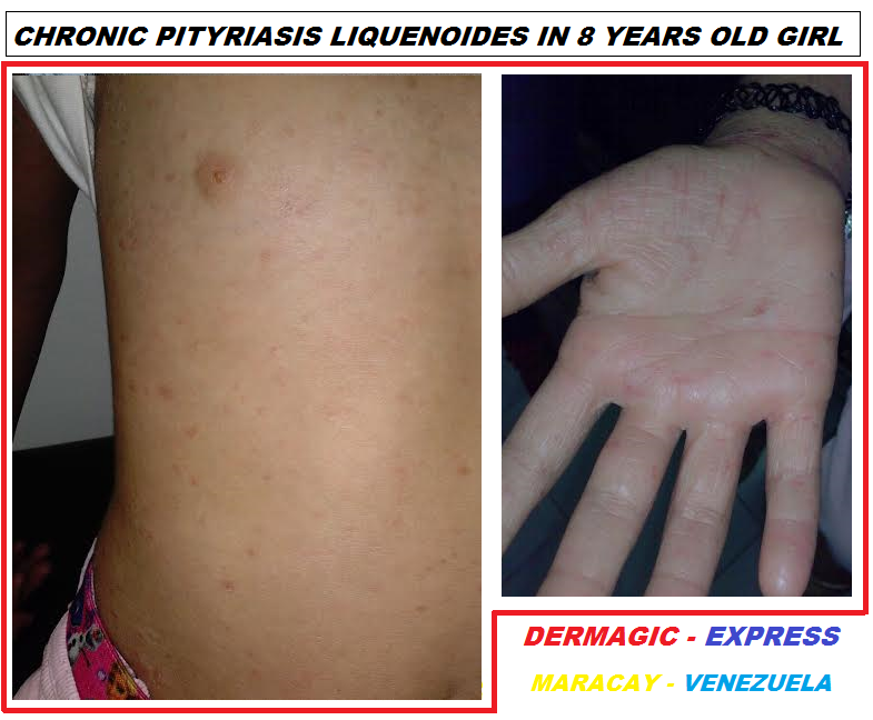 THE PITYRIASIS LICHENOIDES