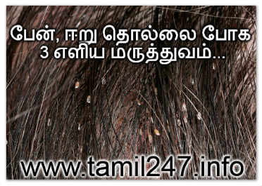 penn, eeru, podugu thollai neenga iyarkai maruthumam, lice removal tips in tamil, eliya patti vaithiyam, lice in hair, lice removal home remedies in tamil language, பேன், பொடுகு, ஈர்