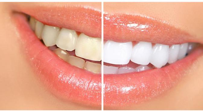 Memutihkan Gigi Secara Instan Sangat Berbahaya Suster Jualan
