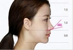 hidung ideal ala bedah plastik wonjin