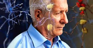 Negative Thoughts and Beliefs About Aging Predict Alzheimer's