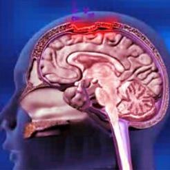 Penyakit Meningitis, Gejala, Penyebab dan Cara Penyembuhan nya