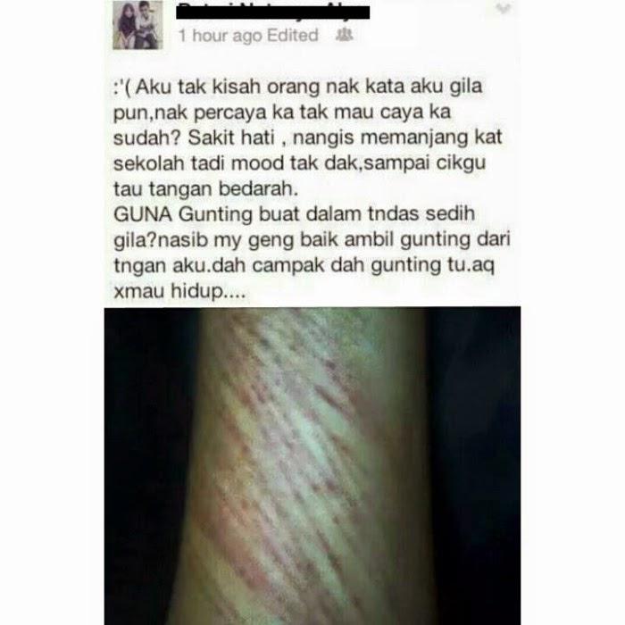 BUDAK SEKOLAH KONGSI CERITA TOREH LENGAN DI FB