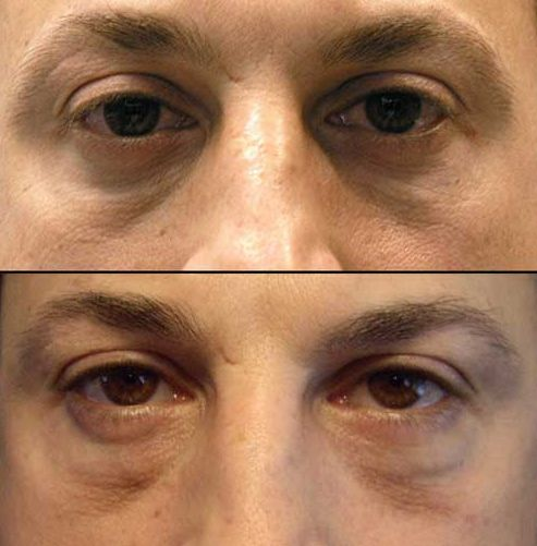 Facial Exercises For Eyes