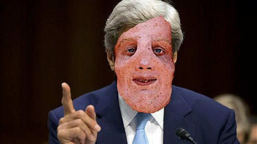 Compulsory Diversity News: What's up with John Kerry's face?