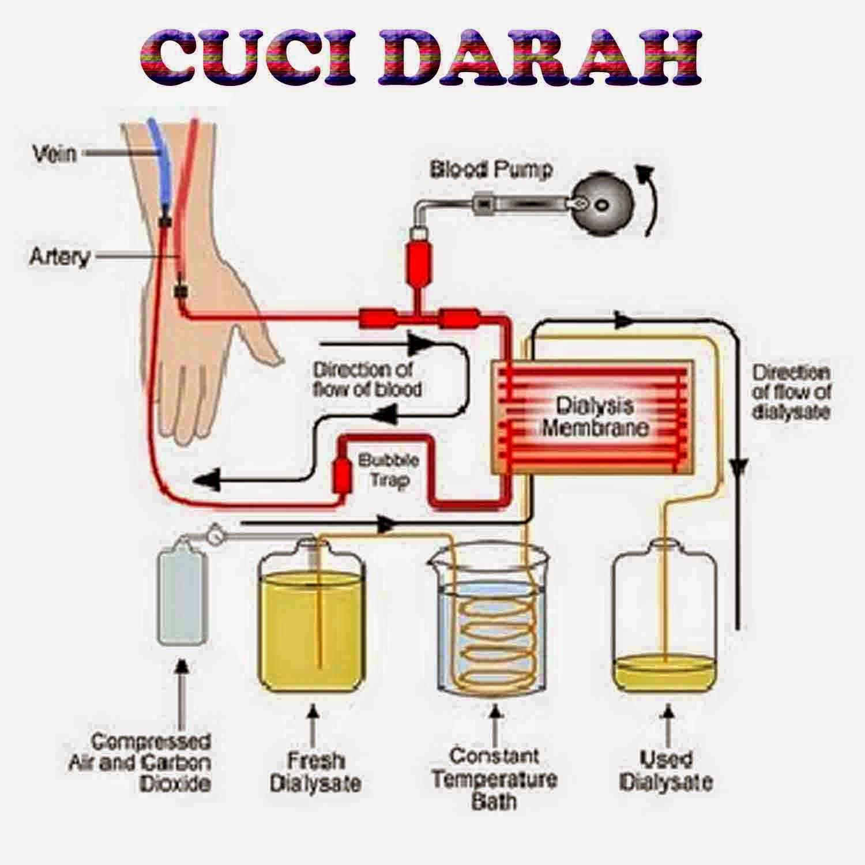 proses cuci darah