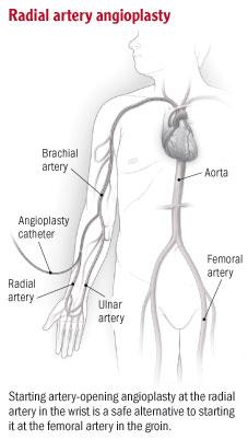 Radial Artery Angioplasty
