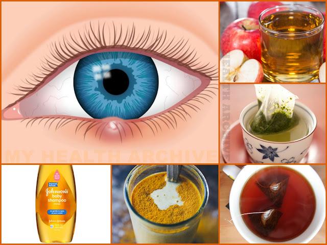 Remedies for eye stye