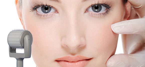Picture of how Dermaroller can Improve the appearance of your skin