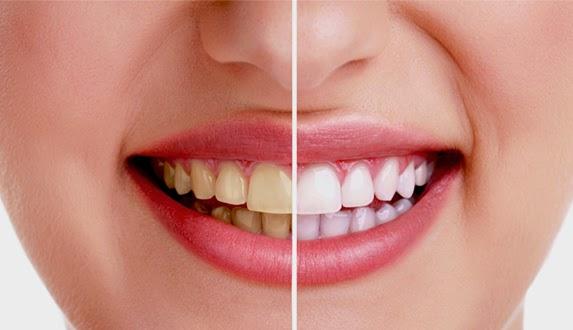 8 Bahan Alami Yang Bermanfaat Untuk Memutihkan Gigi Health Food