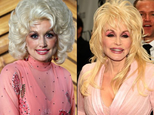 plastic surgery celebrities