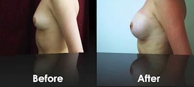 Bukti pemakaian Suplemen Emilay breast pembesar dan Pengencang Payudara