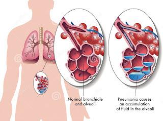 Pneumonia dapat menyebabkan bau mulut